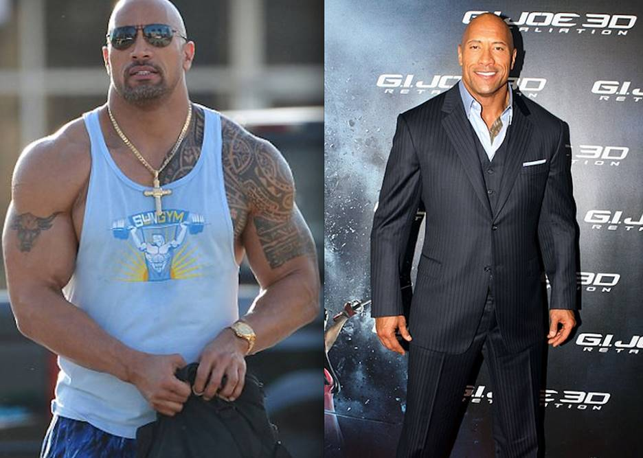 The Rock before and after surgery picture